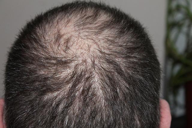 השתלת שיער בטורקיה: המדריך המלא לישראלים
